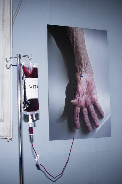 1 transfusio